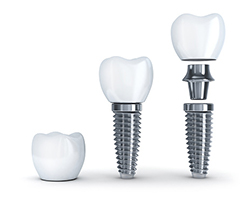 <br title='b11'>Dental Implant surgery at Rai Oral Surgery in Virginia Beach, VA
