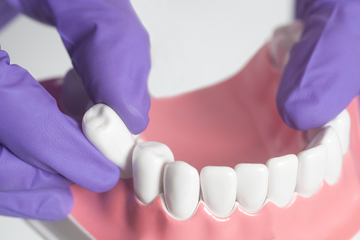 What Makes an Extraction Complicated to Where Oral Surgery Would Be Necessary?